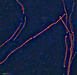 Image of sensory neurons stained against βIIItubulin and Neurofilament medium chain.